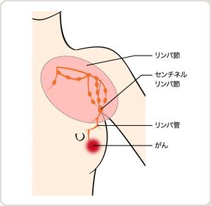 余命 節 乳癌 リンパ 転移
