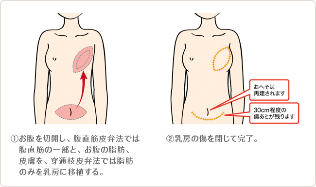 お腹の組織による乳房再建術