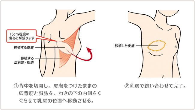 背中の組織による乳房再建術